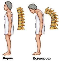Народное средство лечение тромбофлебит на ногах